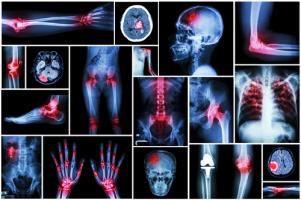 Radiology / X-rays